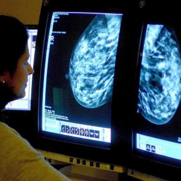 Times Series: There has been a fall in the percentage of women having breast cancer screening.