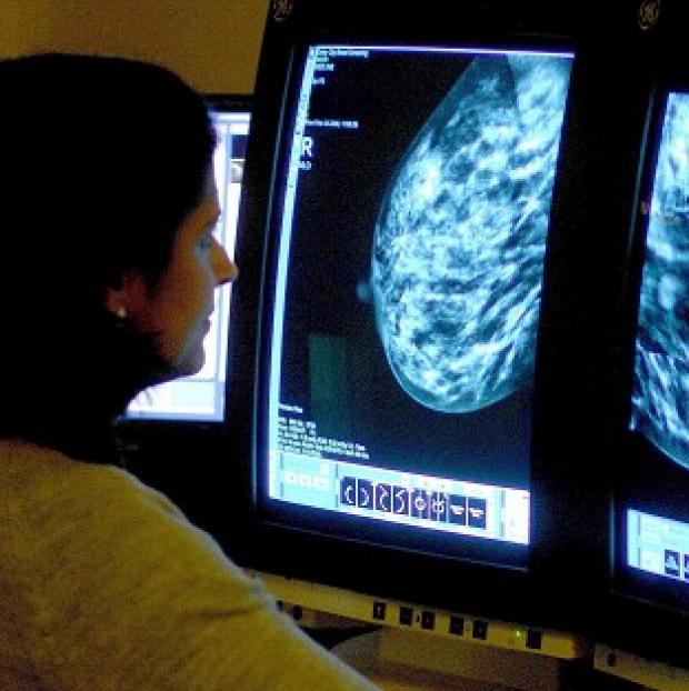 Times Series: Professor Mark Lawler said a high proportion of older women with a certain form of breast cancer receive less chemotherapy than their younger counterparts