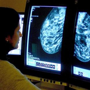 Many women having mastectomies would have been better treated with a lumpectomy, say researc